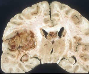 A promising new treatment for brain cancer